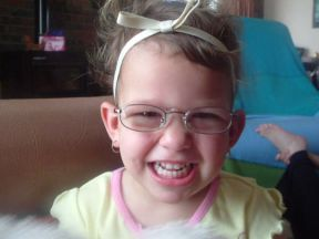 Ashlee, 2 years old - wears glasses for farsightedness and strabismus.  She got her glasses 2 weeks before turning 2, so far no complaining.