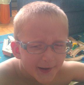 boy wearing glasses for iris coloboma