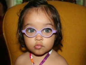 toddler girl in glasses for farsightedness esotropia and astigmatism