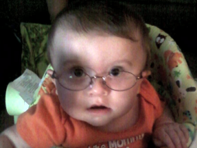 Mason, 8 months old.  He wears glasses for astigmatism and nearsightedness due to atypical coloboma.