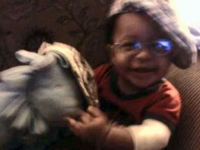 baby boy in glasses for glaucoma