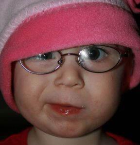 Sally, 18 mos in the photo, now 3 years old.  She wears glasses for horizontal crossing.