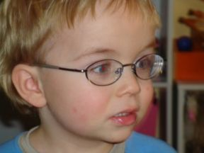 Sam, 3 years old - wears glasses for nearsightedness