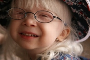 Lyra - 2. She started wearing glasses at 17 months due to farsightedness. Like all kids with albinism, Lyra has multiple eye problems that contribute to her overall low vision.