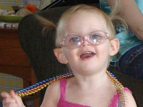 Zella - 20 months.  Diagnosed with infantile esotropia at 7 months and has worn glasses ever since.