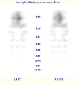 simulation of what Zoe might see without her glasses, using +4 and +4.25 as the prescription.  From www.billauer.co.il/simulator.html