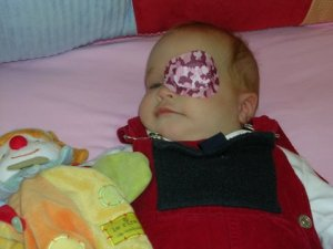 first eye patch at 4 months