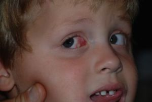 Nicolas' eye