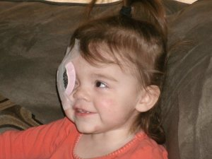 picture of toddler girl with glaucoma and cataracts