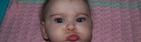 baby girl with crossed eyes, strabismus, esotropia