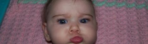 baby girl with crossed eyes, strabismus, esotropia