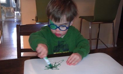 toddler boy wearing glasses and a patch for a cataract